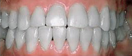 Image of Teeth After Cosmetic Dentistry | Cosmetic, Restorative and Implant Dentist in El Segundo and Carson California