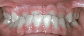 Image of Teeth Before Cosmetic Dentistry | Cosmetic, Restorative and Implant Dentist in El Segundo and Carson California