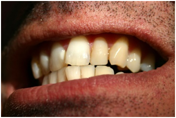 health-problems-that-stem-from-crooked-teeth