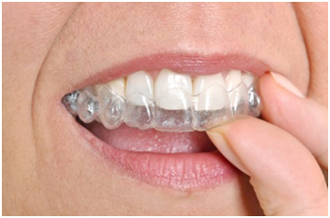 Invisalign: Avalon Dental Care