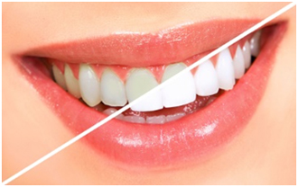 teeth-whitening-diy-or-dentist