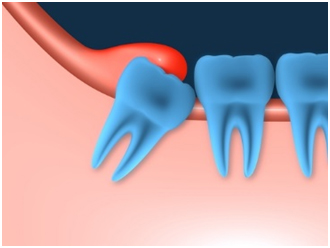 what-you-need-to-know-about-removing-wisdom-teeth