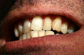 Crooked Teeth | Avalon Dental, your Carson and El Segundo Dentist