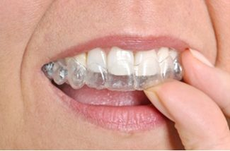 Lady putting Invisalign Clear Aligner Braces in | Avalon Dental, your Carson and El Segundo Dentist