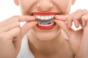 Lady taking Invisalign Clear Aligner Braces out | Avalon Dental, your Carson and El Segundo Dentist
