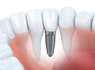 Image of a dental implant in the gums | Avalon Dental, your Carson and El Segundo Dentist