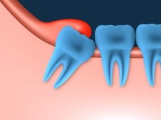 Image of a wisdom tooth rooted sideways in the gum | Avalon Dental, your Carson and El Segundo Dentist