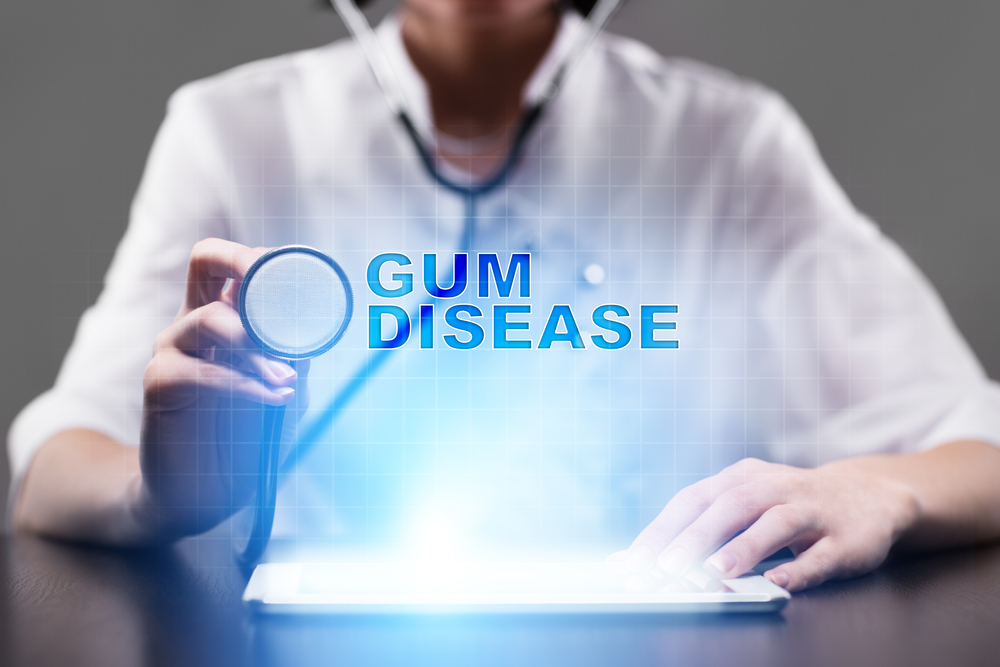 Image of a doctor and the words Gum Disease | Avalon Dental, your Carson and El Segundo Dentist