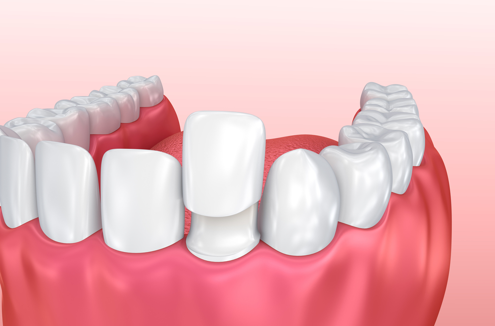 Image of a Composite Bonding on a tooth | Avalon Dental, your Carson and El Segundo Dentist