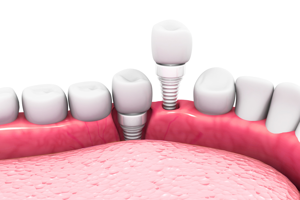 Image of a Dental Implant in a gum | Avalon Dental, your Carson and El Segundo Dentist