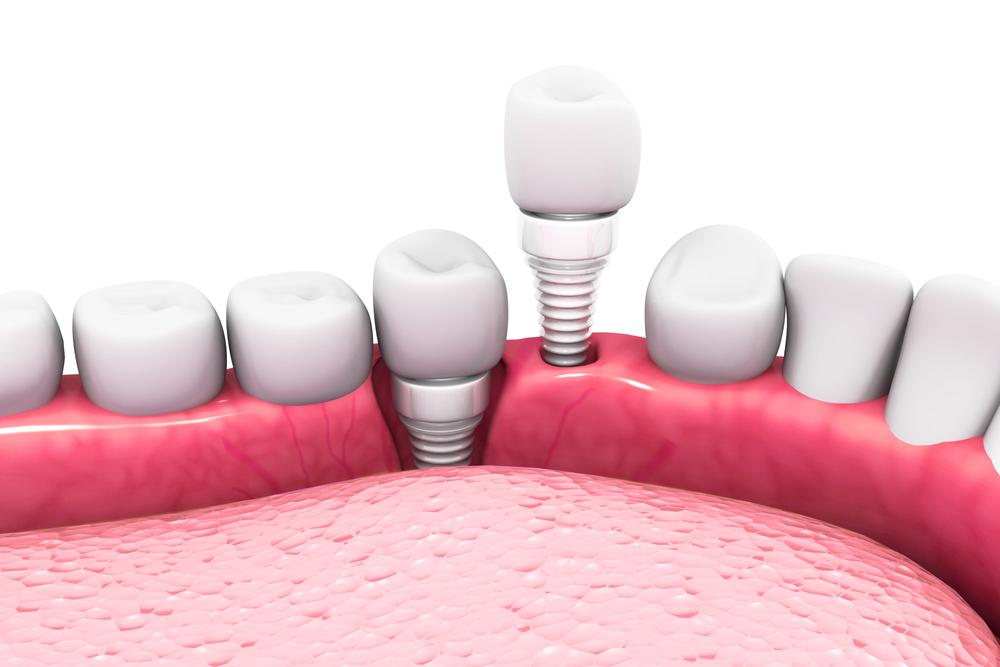 Image of a Dental Implant in a gum | Avalon Dental, your Carson and El Segundo Dentist