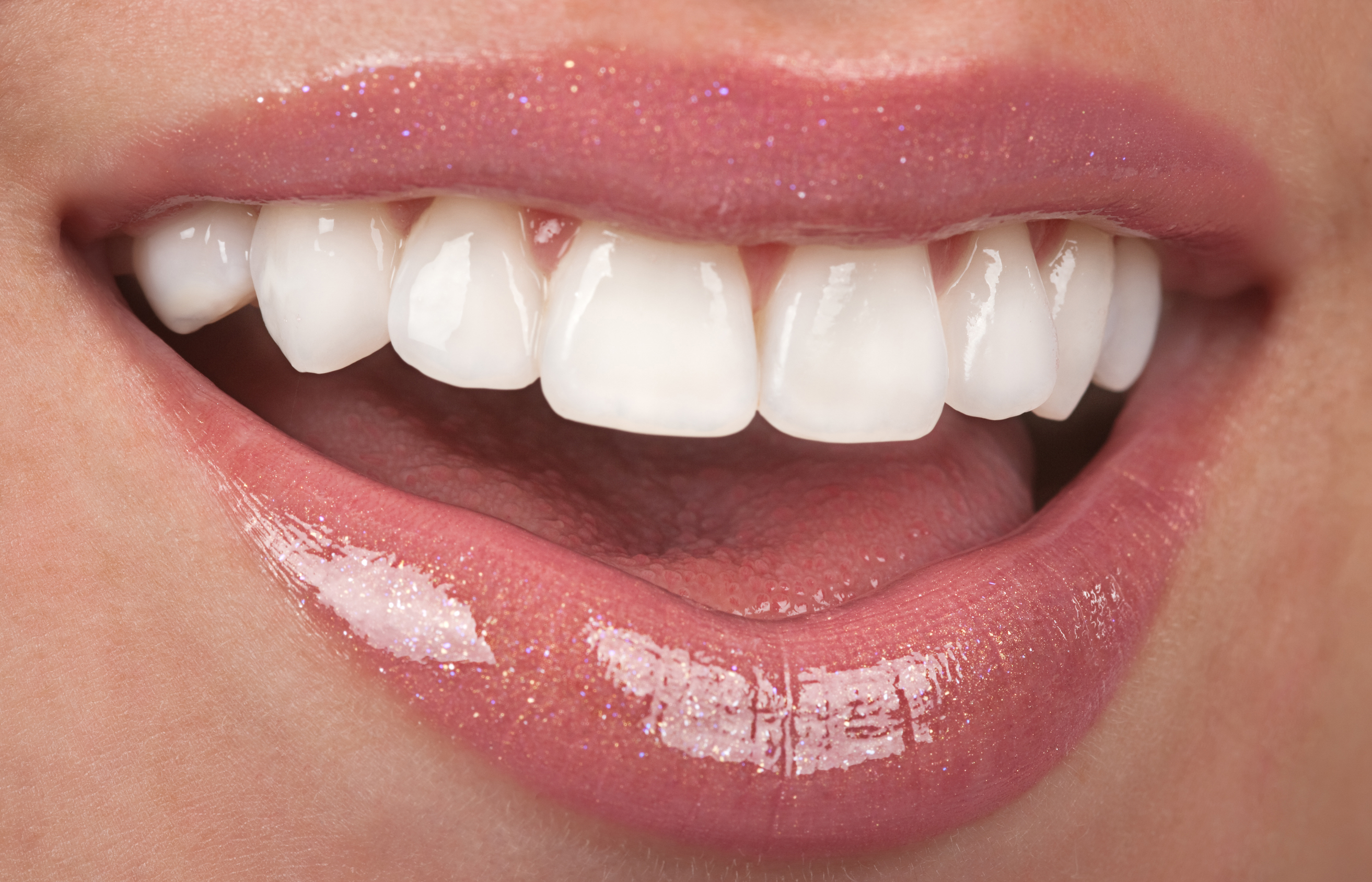 Smiling Teeth | Avalon Dental Care, Cosmetic and Implant Dentists in El Segundo and Carson.
