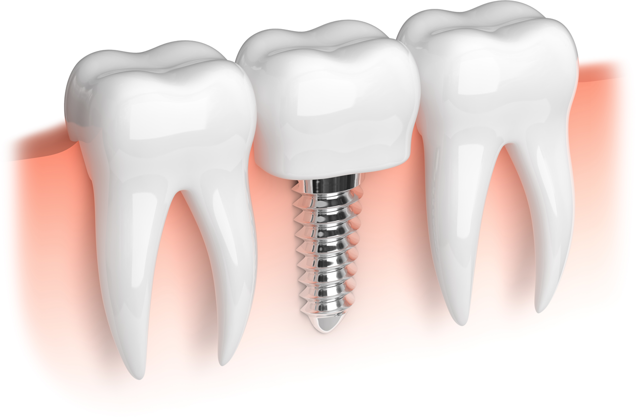 How Do Dental Implants Work? | Avalon Dental, your Carson and El Segundo Dentist
