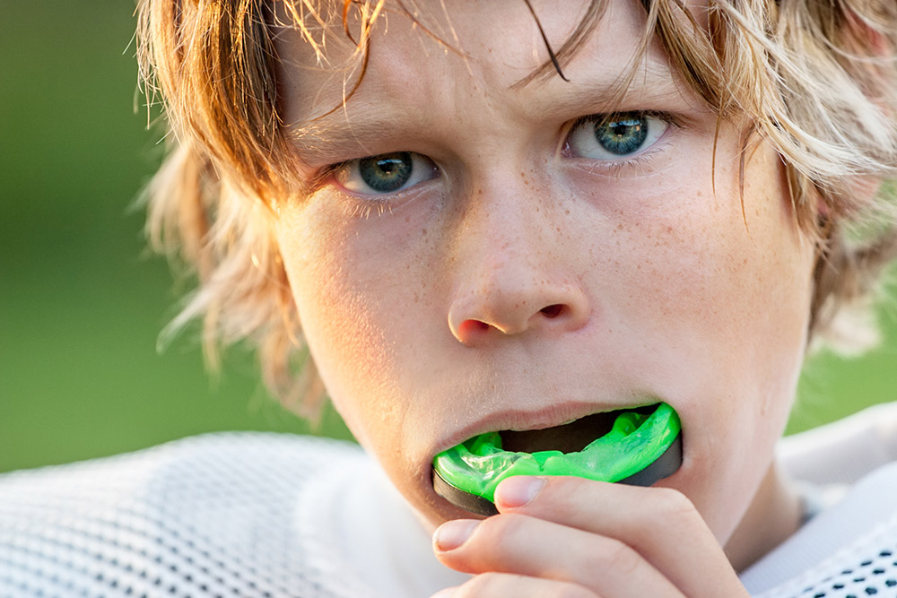 Why Mouthguards are a Must for Sports | Avalon Dental, your Carson and El Segundo Dentist