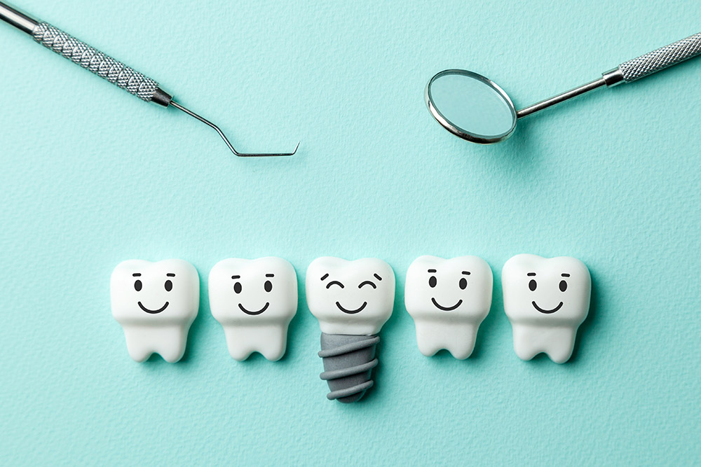 Implants – Endosteal and Subperiosteal | Avalon Dental, your Carson and El Segundo Dentist