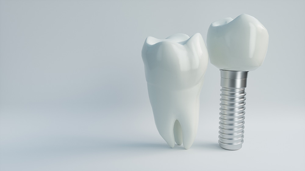 What Is the Process of Getting a Dental Implant?